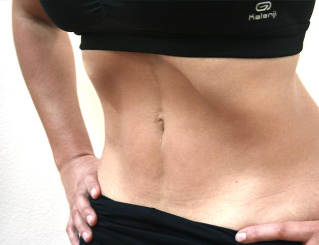 Tratamiento post-parto en Sane Pilates